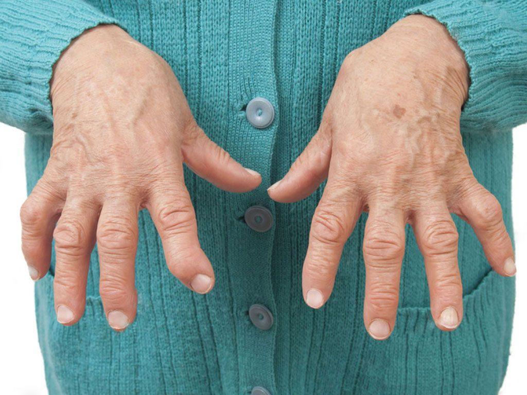 انتشار المرض استئوآرتروز