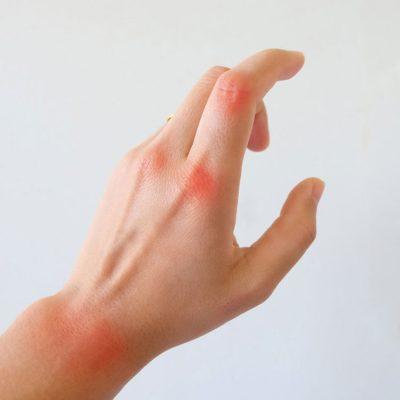 ما هو التهاب المفاصل الروماتويدي؟