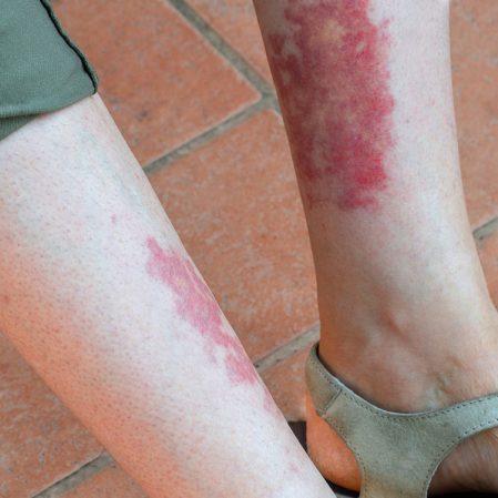 ما هو التهاب الأوعية الدموية؟