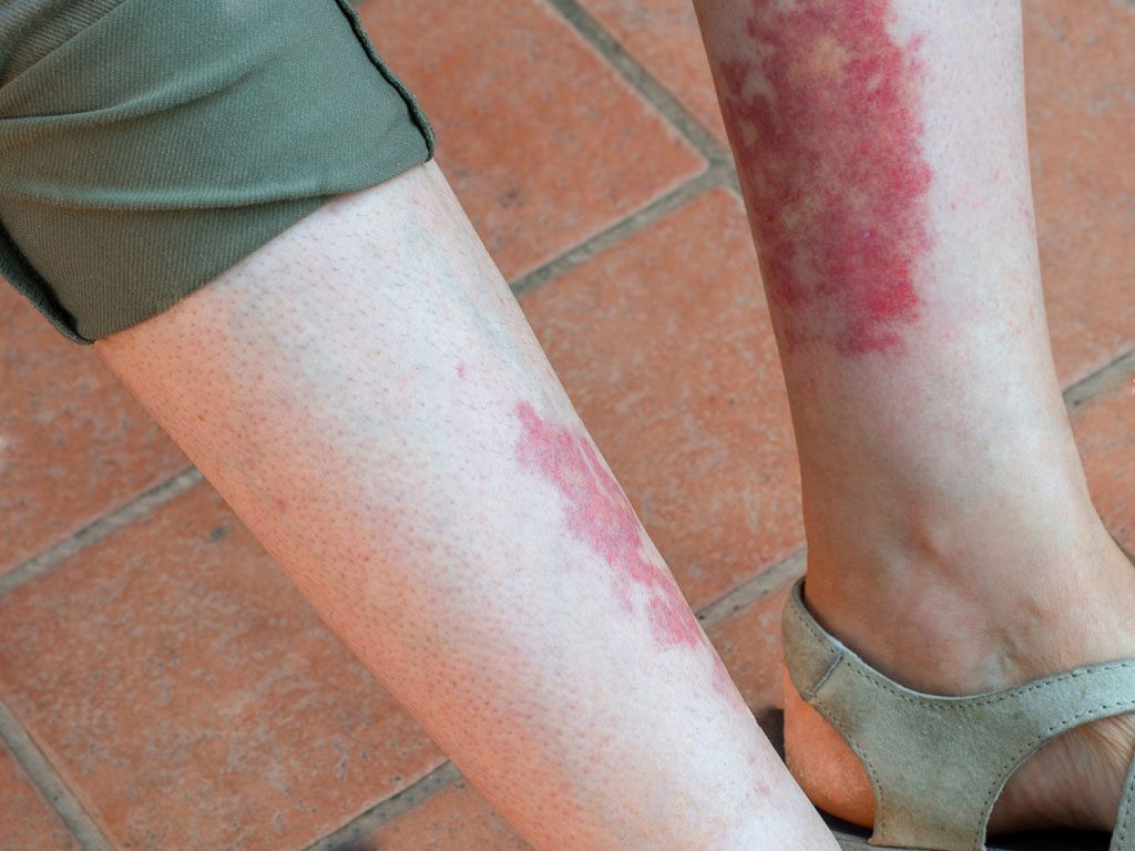 تعريف التهاب الأوعية الدموية