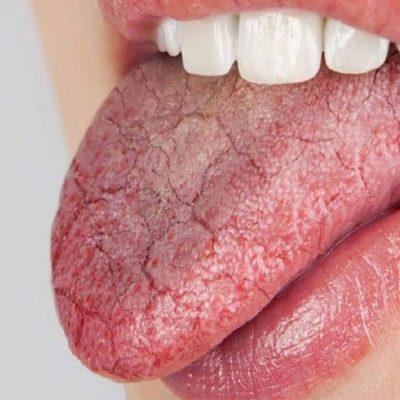 ما هو مرض سندرم شوغرن؟