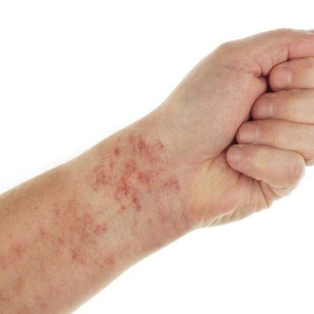 ما هو مرضه بربورا هنوخ شوئن لاین؟