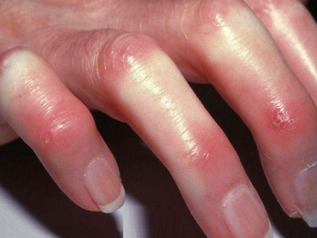 تعريف تصلب الجلد