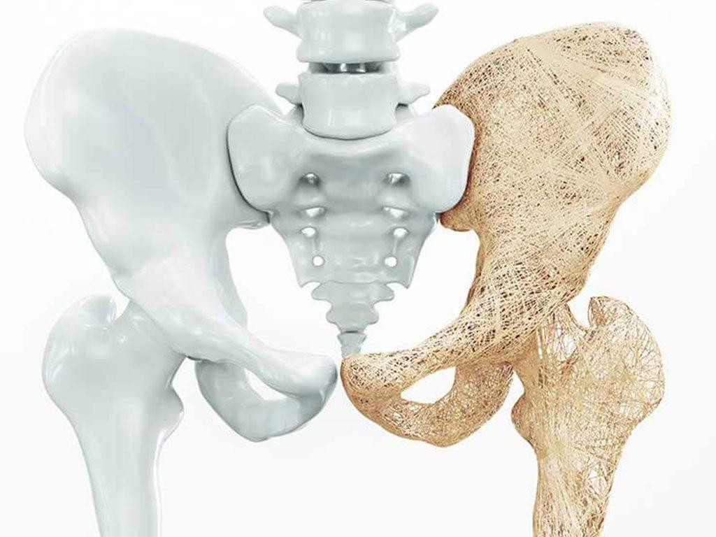 انتشار مرضهشاشة العظام