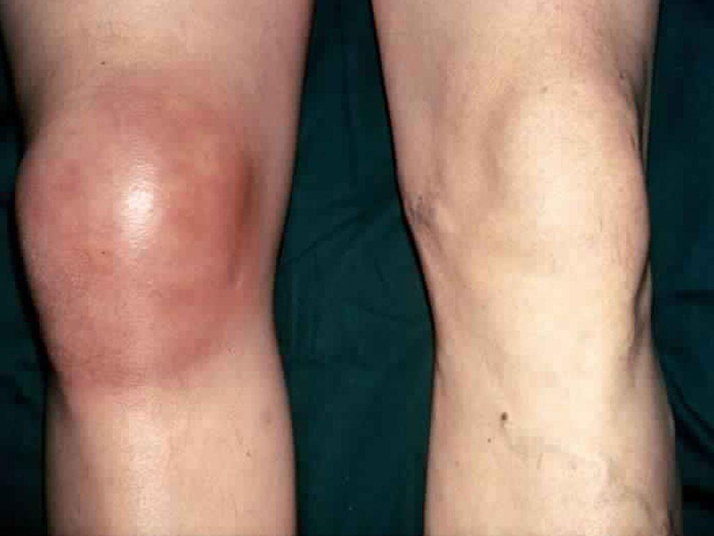 سبب المرض التهاب المفاصل المعدي