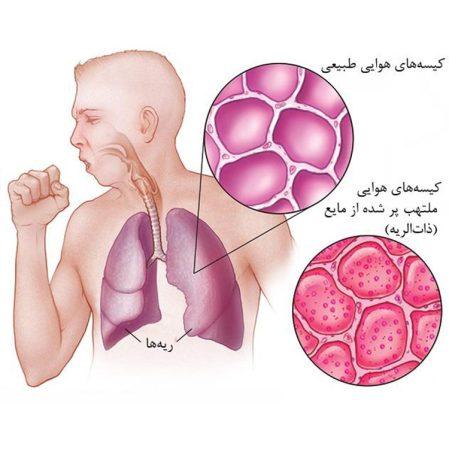 ما هو الالتهاب الرئوي؟