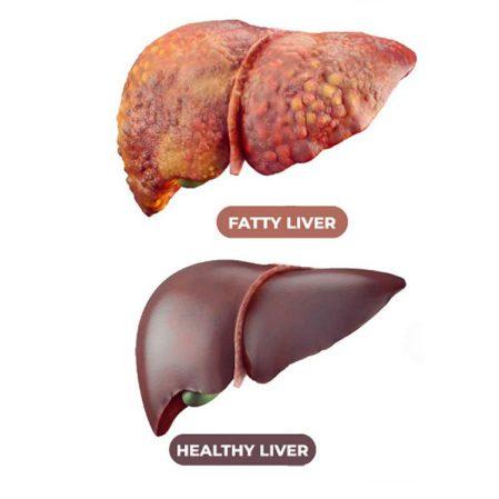ما هو مرض الكبد الدهني؟