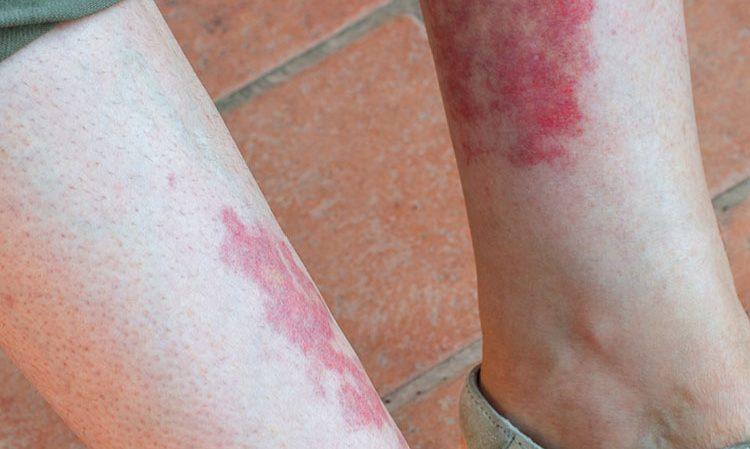 بیماری واسکولیت چیست؟