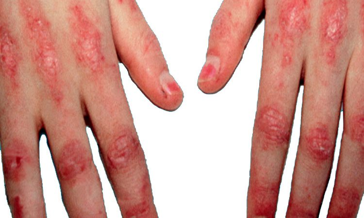 بیماری پلی میوزیت و درماتومیوزیت چیست؟