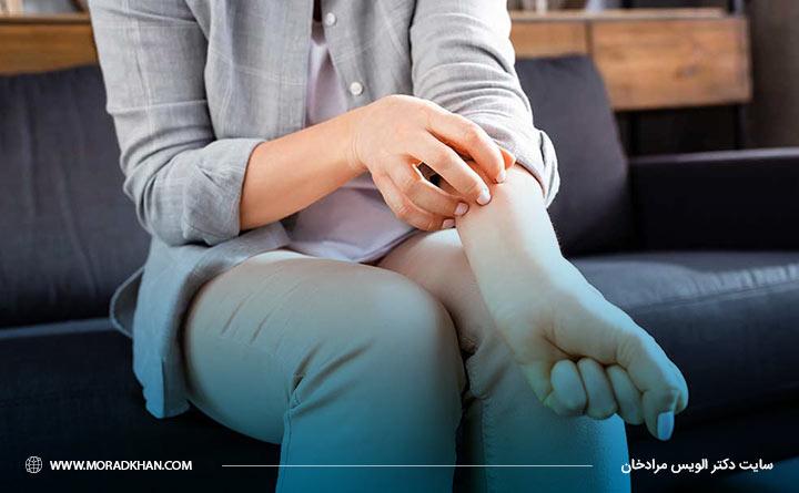 پسوریازیس نوعی بیماری پوستی است که به شکل پلاکهای پوستی ظاهر میشود.