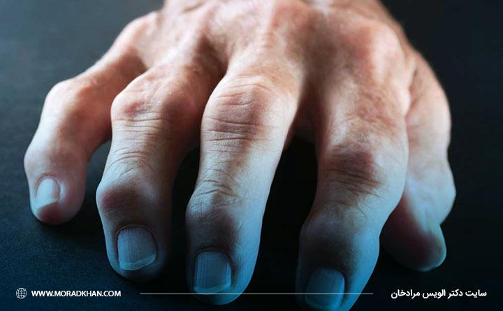 آرتریت روماتوئید سب التهاب در مفاصل میباشد.