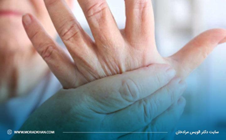 آرتریت روماتوئید در نهایت سبب آسیب به مفاصل بدن میشود.