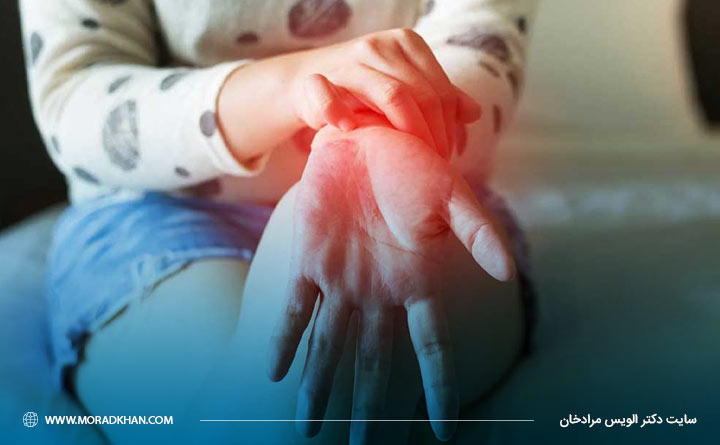 پسوریازیس میتواند سبب متورم شدن مفاصل شود.