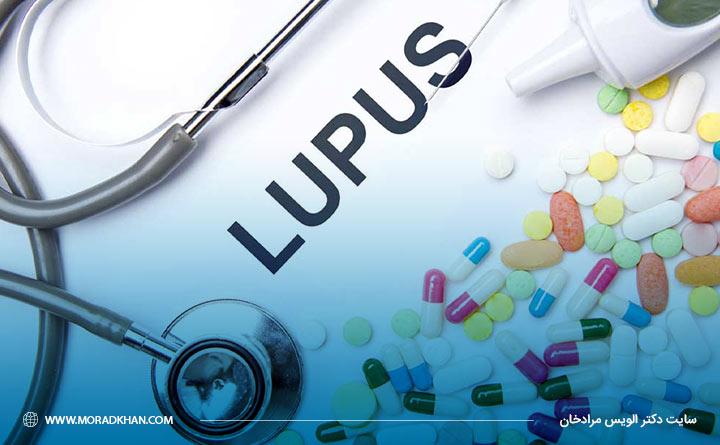پزشک برای کاهش درد و التهابات مفصلی ناشی از لوپوس برخی داروها را تجویز میکند.