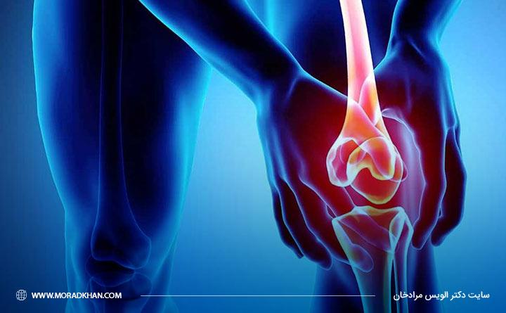 آرتروز بر اندام داخلی تاثیر نمیگذارد.