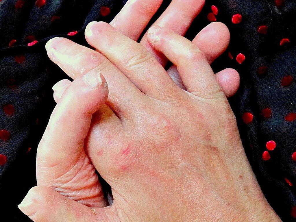 درمان بیماری اسکلرودرمی