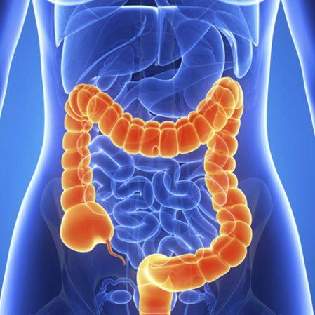 سرطان روده بزرگ - سرطان کولون